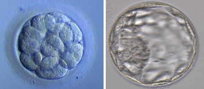 Embriões 2