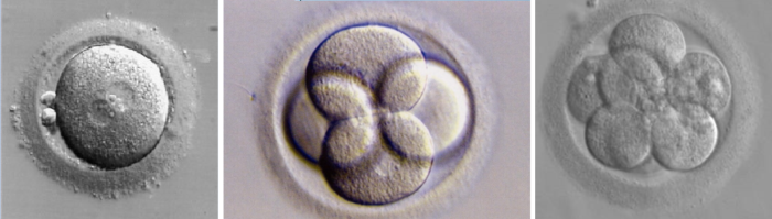Embriões